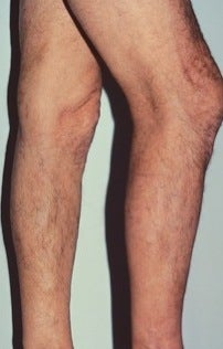 Phlebectomy Leg Vein Removal after 370430