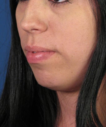 Chin Implant before 534045