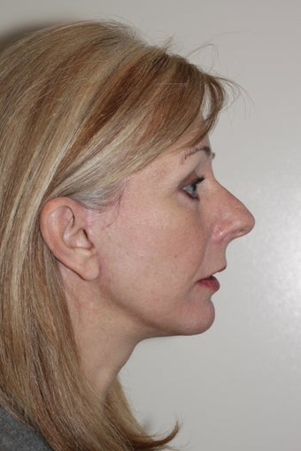 Facelift and Chin Augmentation