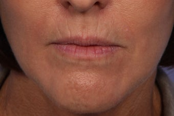 Botox and Juvederm Ultra Plus to Upper Lip before 308354