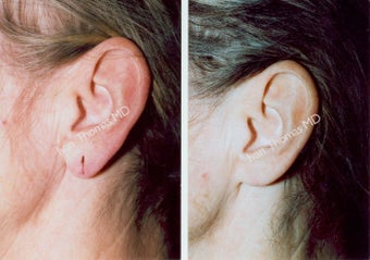 Earlobe Surgery before 243332