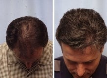Hair replacement with Fleming/Mayer flap