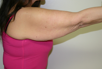 Brachioplasty (Arm lift) before 263698