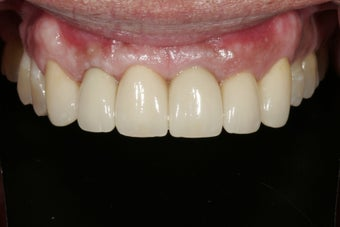Dental implants in the smile zone after 237970