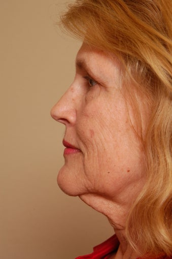 Refresher Facelift w/Neck Pliction, Browlift, TCA Peel Lower Lids, Fat Injections to Cheeks & Lips before 252878