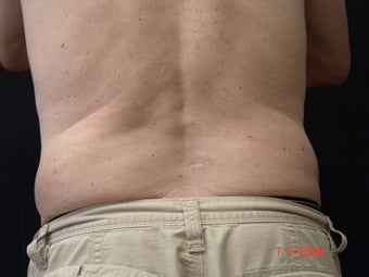 Coolsculpting after 604198