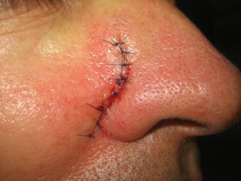 Mohs Surgery 467185