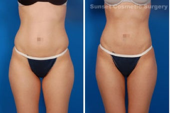 Liposuction before 485265