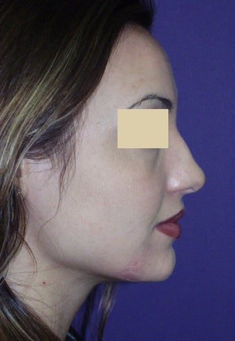 Rhinoplasty before 134430
