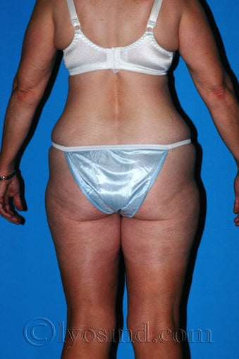 Lower Body Lift and Tumescent Liposuction before 233085
