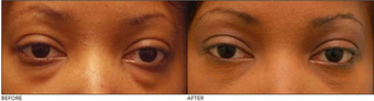 Lower Eyelid Blepharoplasty before 138713