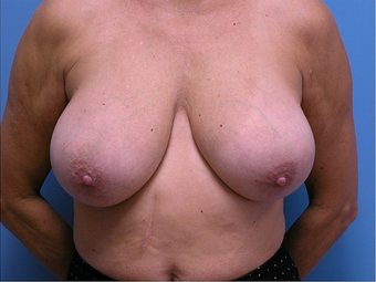 Breast Implant Removal  after 310520