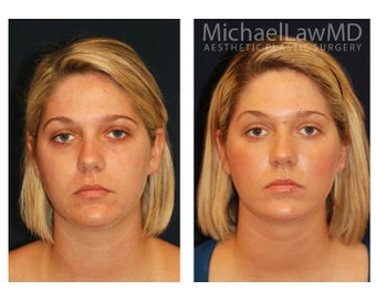 Chin Liposuction before 395415
