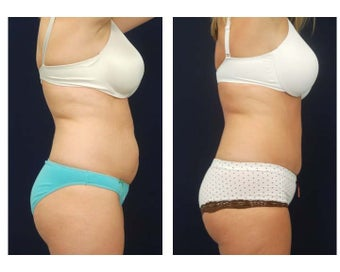 Abdominoplasty - Tummy Tuck 396151