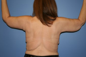 Brachioplasty after massive weight loss