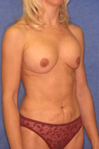 Tummy Tuck with Liposuction 410395