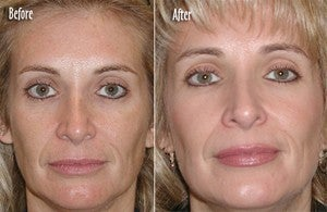 Microdermabrasion Full Face before 6389