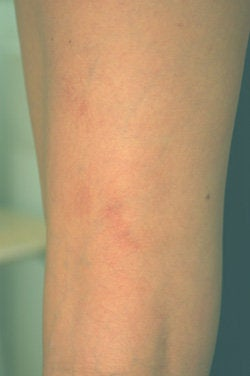 Laser Treatments for Spider Veins  after 104206