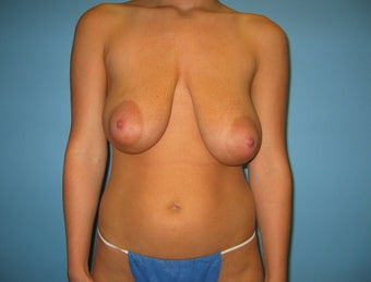 breast reduction before 284944