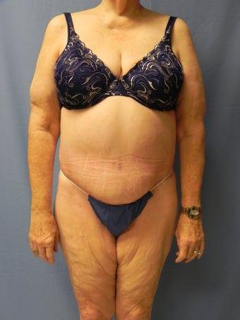 Circumferential Body Lift after 364633