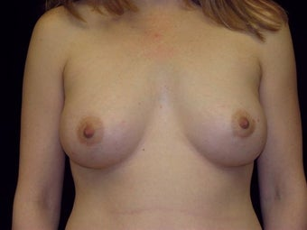 Breast augmentation after 293956