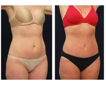 Tummy Tuck or Abdominoplasty before 283309