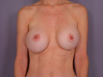 Breast Revision before 307211
