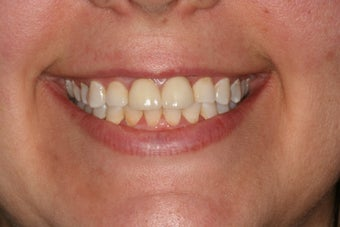 All-ceramic crowns for anterior teeth after 458440