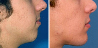 Chin Implant before 642995