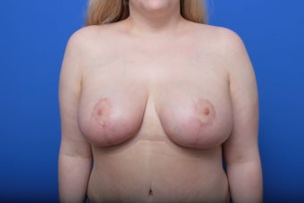 Breast Reduction after 621913