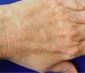 Radiesse hand rejuvenation after 374252