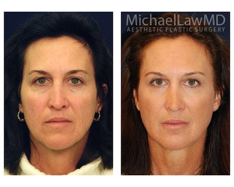 Cheek Augmentation before 415257