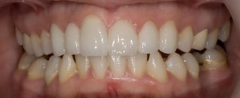 porcelain veneers 363976