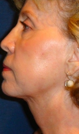 Neck liposculpture after 374887