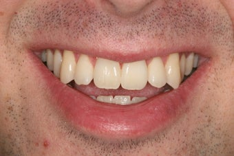 ZOOM whitening before 343720