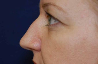 Non-Surgical Rhinoplasty before 513494