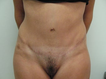 Tummy Tuck after 541833