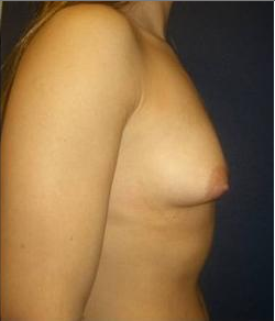 Breast Augmentation 220278