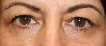 Upper Lid Blepharoplasty before 106037
