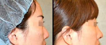Rhinoplasty before 650736