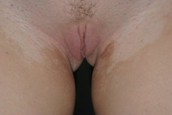 Labiaplasty after 325087