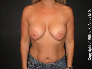 Breast Implant Revision  before 595902