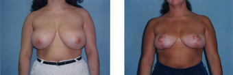 Breast Reduction before 265838