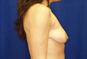 Breast Augmentation with Lift before 630071