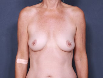 Breast Augmentation before 398401