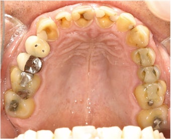 Dental crowns for GERD damage before 113937