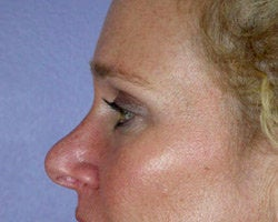 Eyelid Surgery after 280385