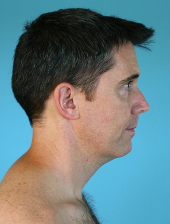 Neck Lift after 229647
