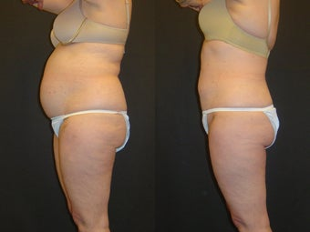 SmartLipo before 96273