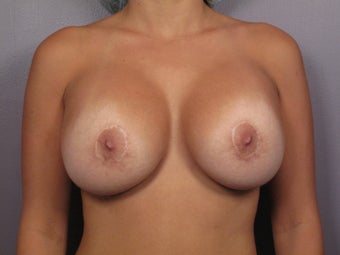 Breast Implant Revision after 311095